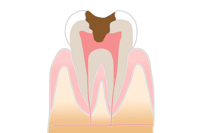 神経の虫歯(C3)