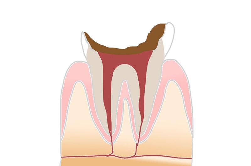 歯根部だけが残った虫歯(C4)