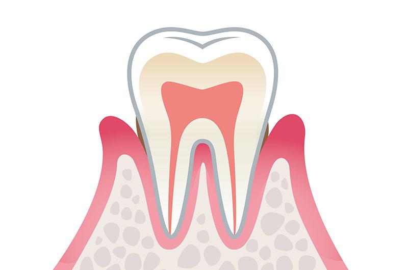 初期歯周炎